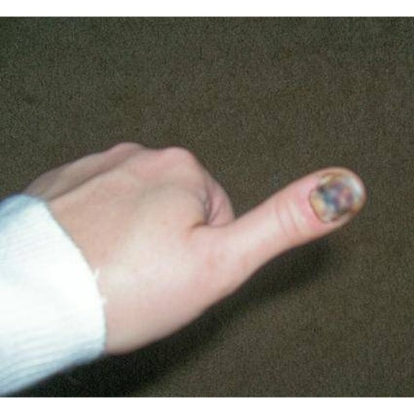 Medical Advice for a Smashed Thumb
