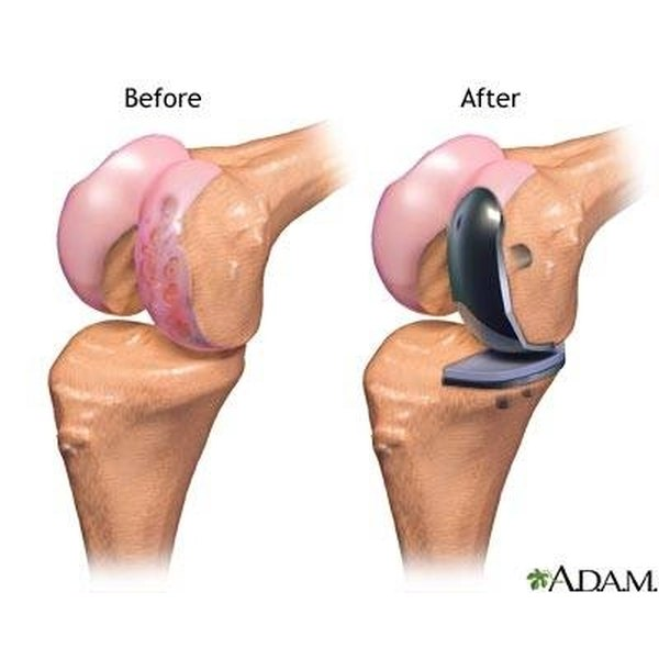 Partial Hip Replacement Surgery Pictures To Pin On
