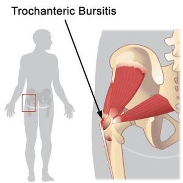 Bursitis Of The Hip Symptoms Healthfully