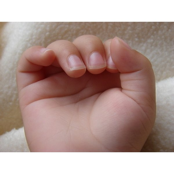 What Causes Horizontal Ridges in Fingernails? | Healthfully