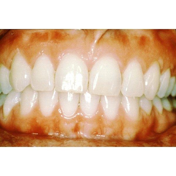 Gum Injury Home Remedy