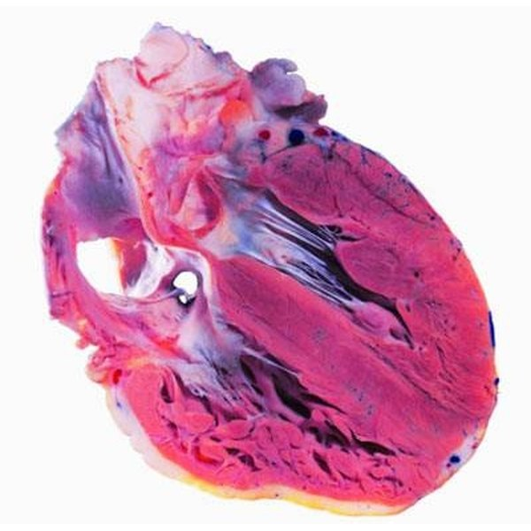 Causes and Symptoms of a Weak Heart