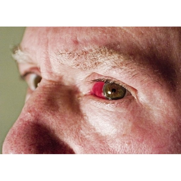 Why Do Blood Vessels Burst in Eyes? | Healthfully