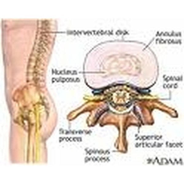 Lumbar Spinal Stenosis Symptoms