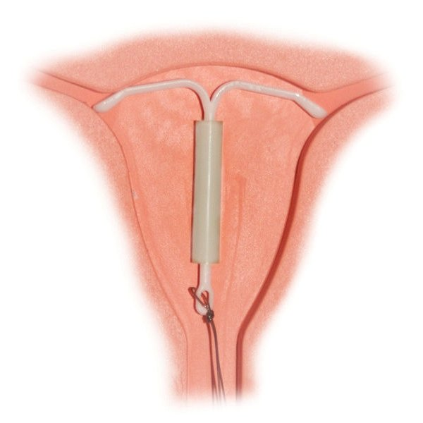 Problems With Mirena IUD