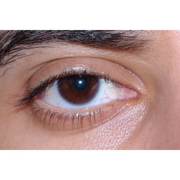 Pimples of the eye may resolve without treatment.
