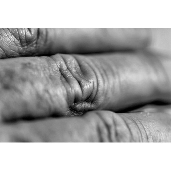There are plenty of treatments for hand wrinkles