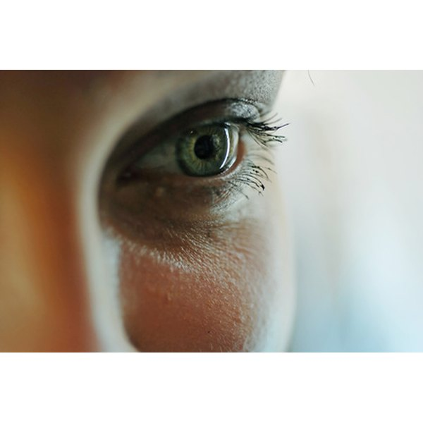 Dark circles around the eyes often result from genetics, sinus problems and aging.