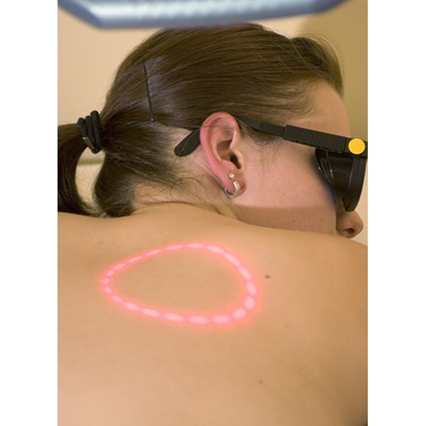 Lasers can remove flat brown moles.