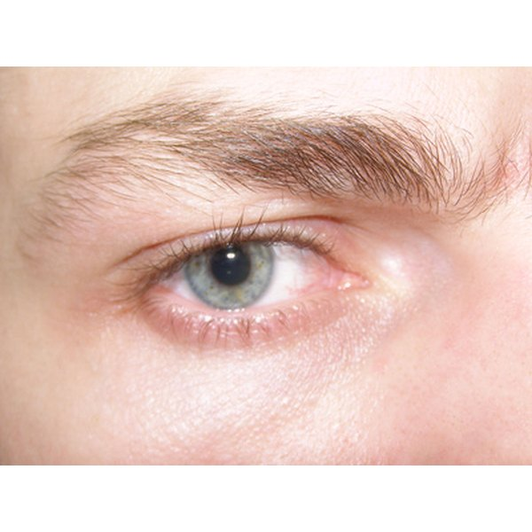 Dry eye may cause redness and irritation.