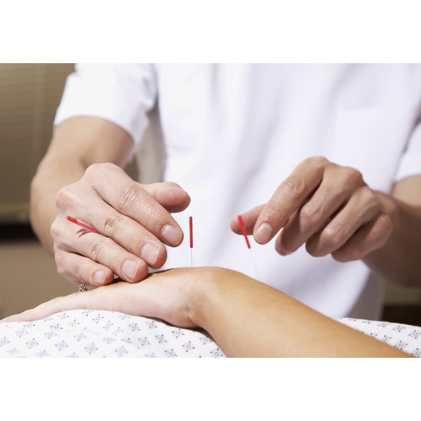 If performed by a trained professional, acupuncture is considered safe and well-tolerated treatment option for MS patients.