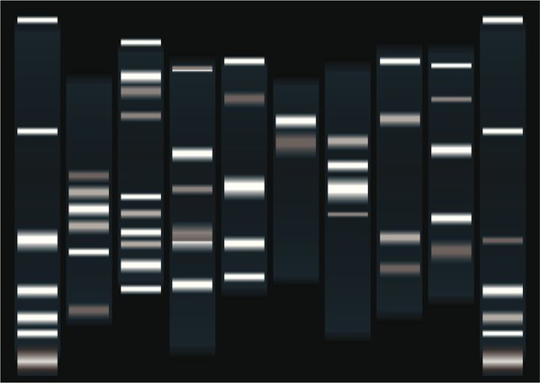 Each band in the visualized gel represents a group of DNA fragments of the same size.