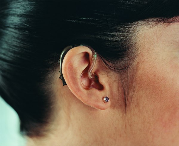 Insurers sometimes require special coverage for hearing aids.
