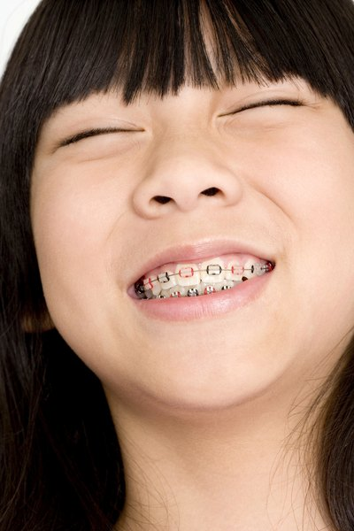 orthodontic assistants often work with children