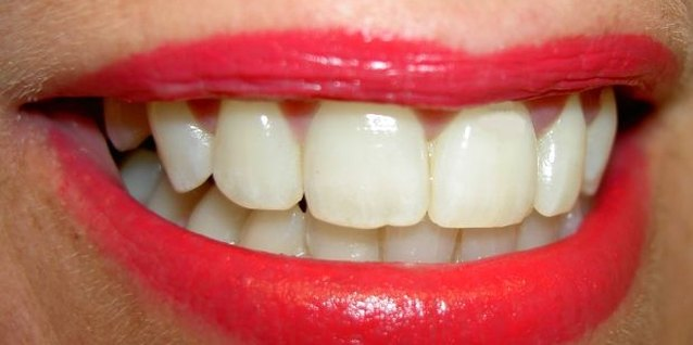 Do it Yourself Teeth Whitening