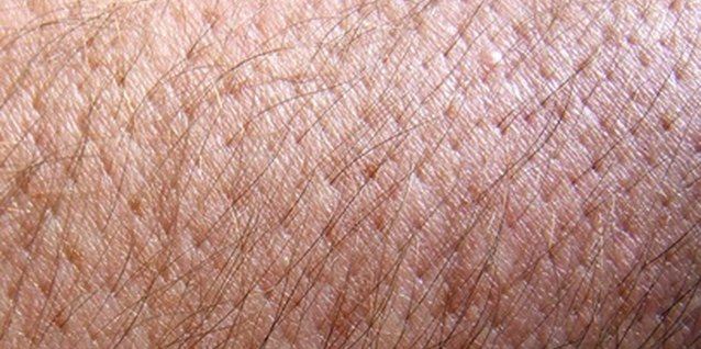 how to get rid of ingrown hairs on arms