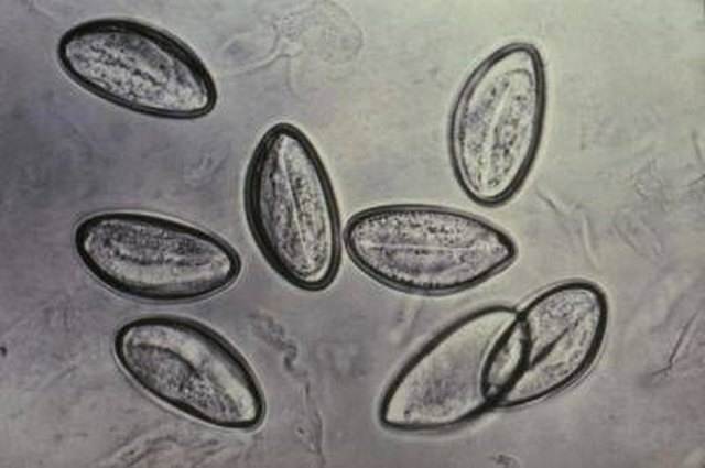 A magnified view of pinworm eggs.