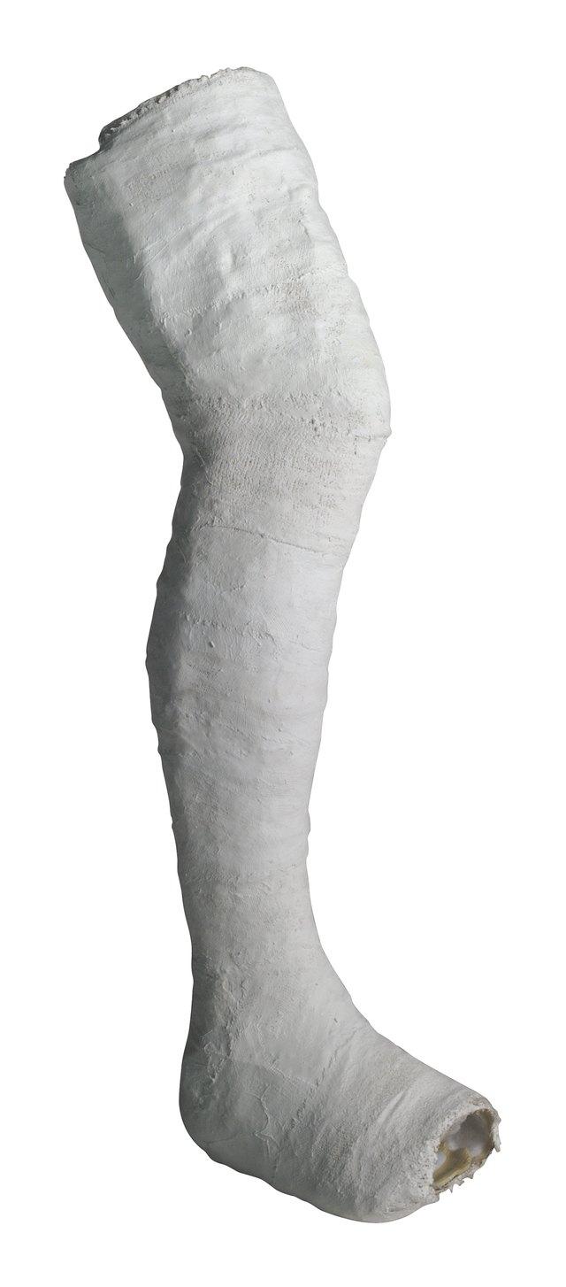 How To Make A Fake Leg Cast Without Fiberglass Ehow
