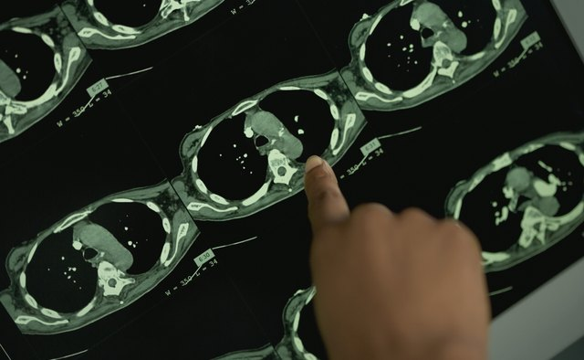 Finger of female doctor pointing at spot on MRI scan