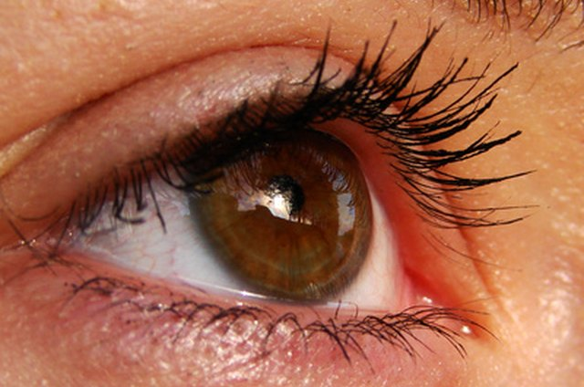 Using Steroid Creams Around the Eyes | LEAFtv