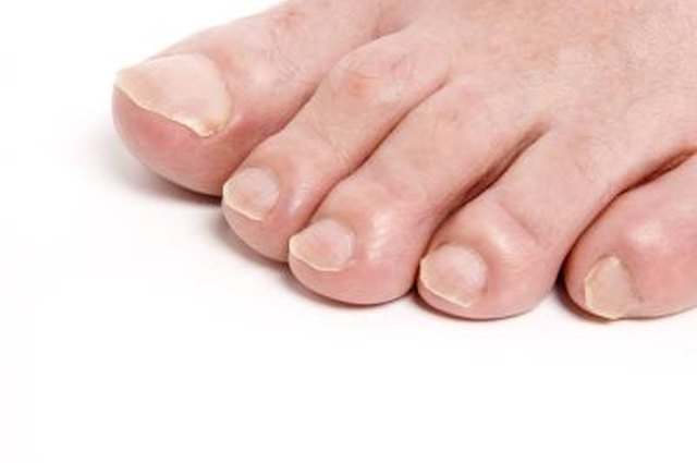 What Do You Do to Make Your Toe Nails Soft So You Can Cut Them? | LEAFtv