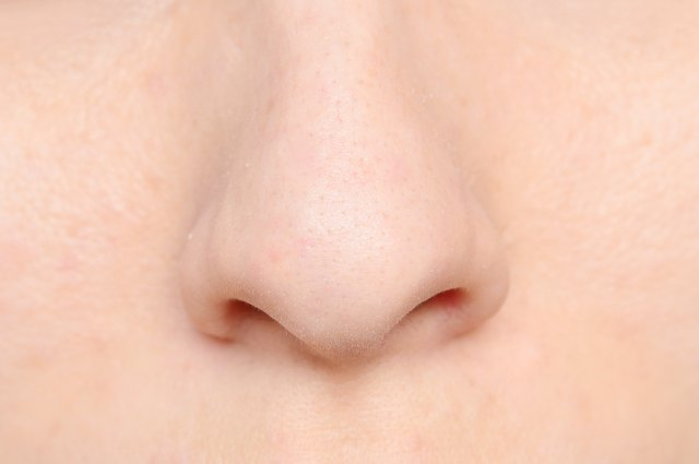 How to Get Rid of Veins on Your Nose | LEAFtv