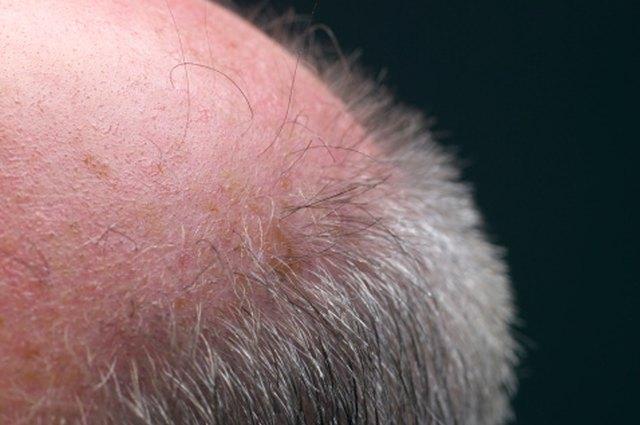 Natural Ways to Regain Lost Hair | LEAFtv