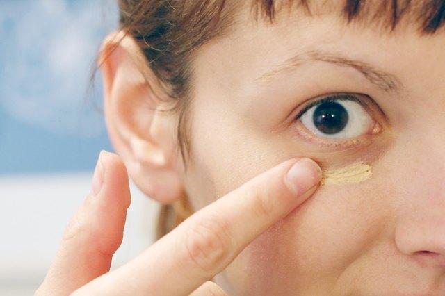 dark circles under eyes causes vitamin deficiency