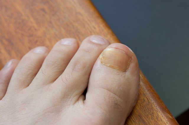 How to Get Rid of Brown Toenails | LEAFtv