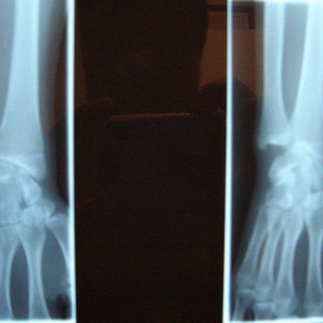 Radiology Programs in Canada