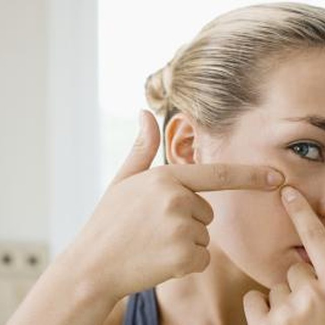 The Best Way to Handle a Pimple