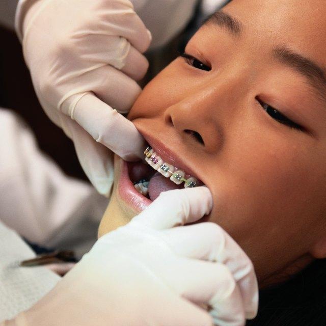 Army Regulations on Dental Braces