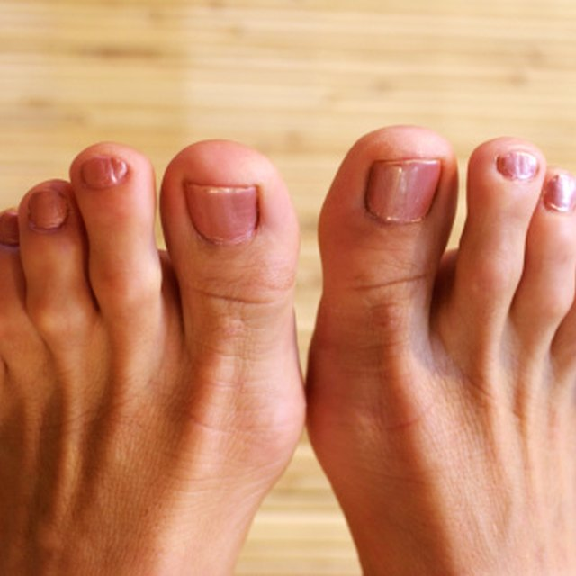 How to Remove a Hangnail on a Toe