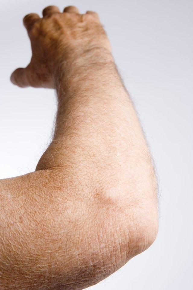 Elbow Extension Exercises