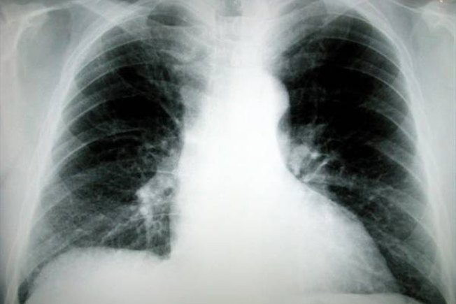 [Article Image] - About Lung Cancer Symptoms: Coughing