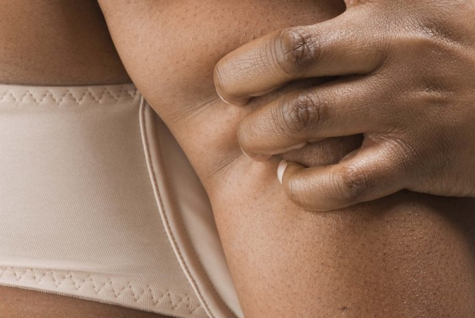 How to Tighten Flabby Skin Under the Upper Arm