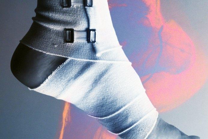 How to Strengthen Leg Muscles After a Broken Foot Heals