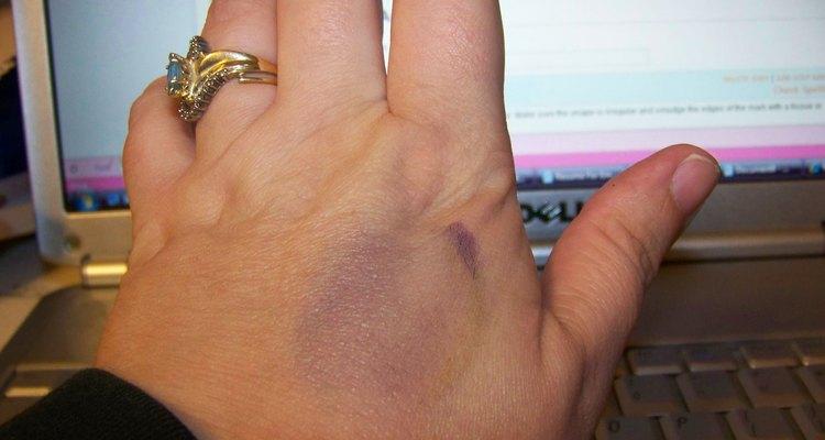 Marker bruise