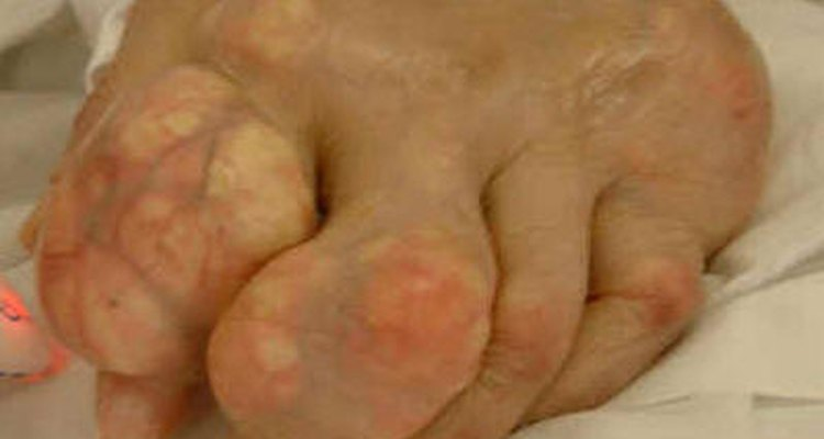 Gout in the foot can be both painful and disfiguring.