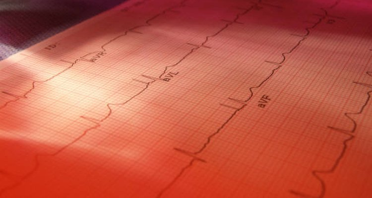 EKGs may be used to determine if a heart valve is leaking. Microsoft.com
