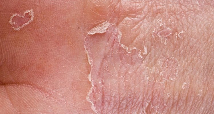 The causes for peeling of skin on your hands can be varried.