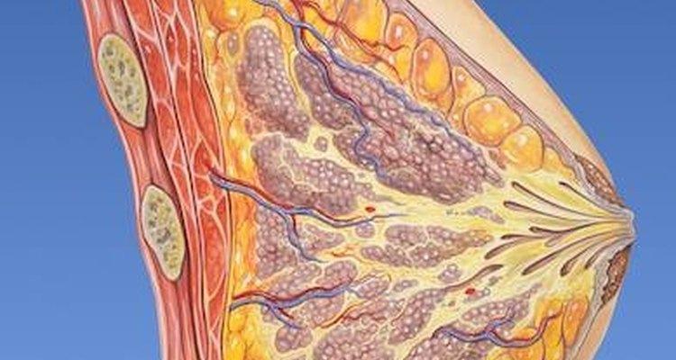 Muitos dos nódulos que aparecem nas mamas são de ocorrência natural