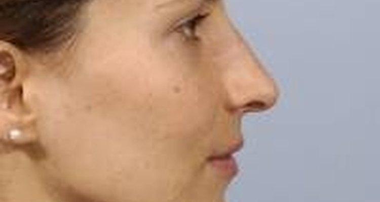 A assimetria facial frequentemente ocorre quando existem anormalidades ou irregularidades na mandíbula