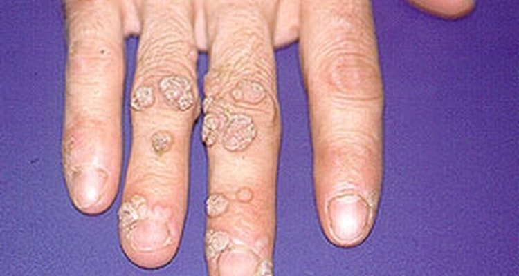 Hands are common places for warts.