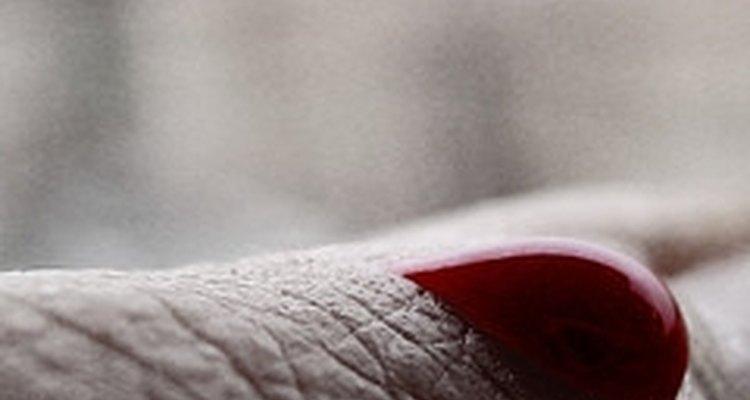 A secreção de sangue vermelho vivo é indicativo de lesão ativa