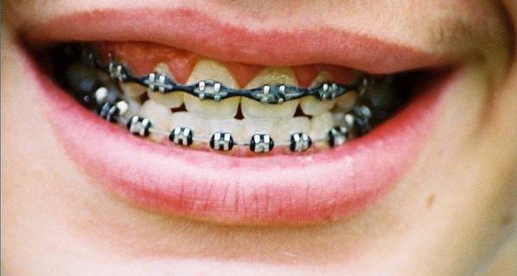 Descubre cuál es el tipo de frenos dentales que te ajusta mejor.