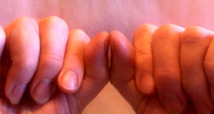 O espaço entre a extremidade articular do dedo e a ponta do dedo deverá criar a forma de um diamante, mas essa forma desaparece com o baqueteamento