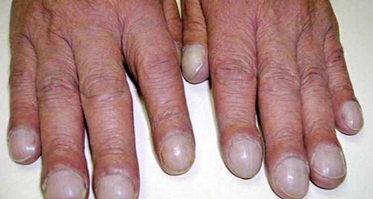 Com o baqueteamento, as pontas dos dedos se tornam arredondadas e bulbosas