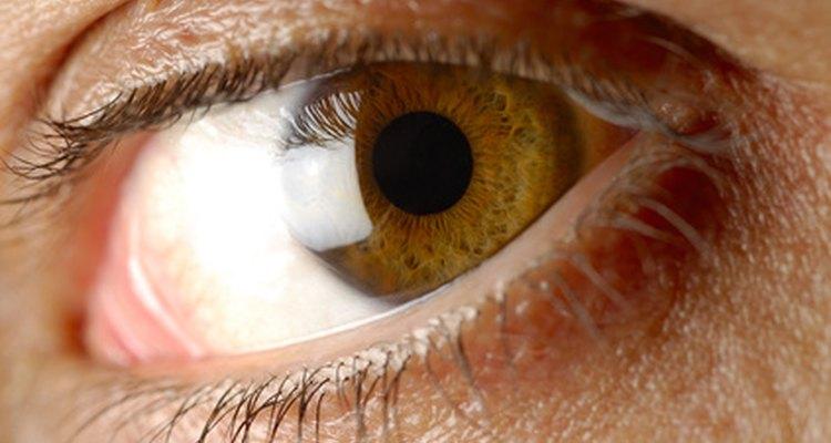 O olho castanho é uma característica de um gene dominante