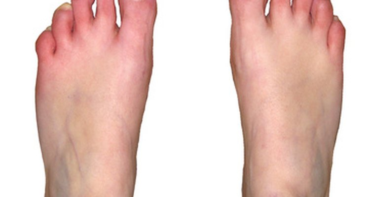 Foot problems can be a sign of heart disease.